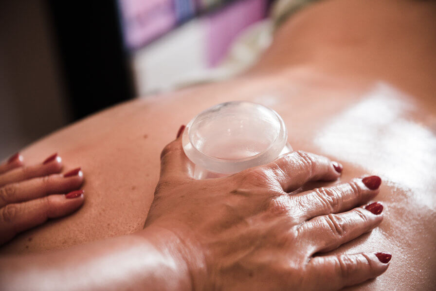 Cuppingmassage